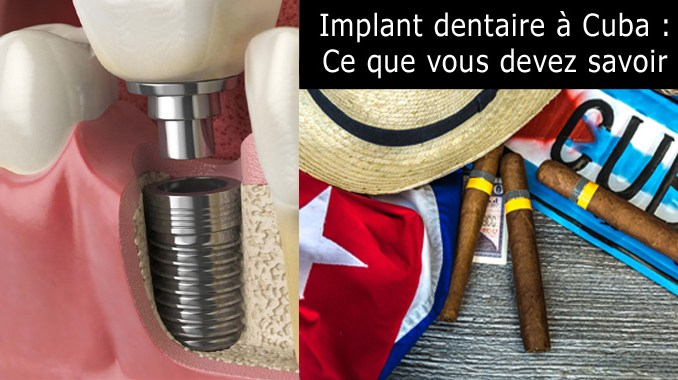 Implant dentaire à Cuba