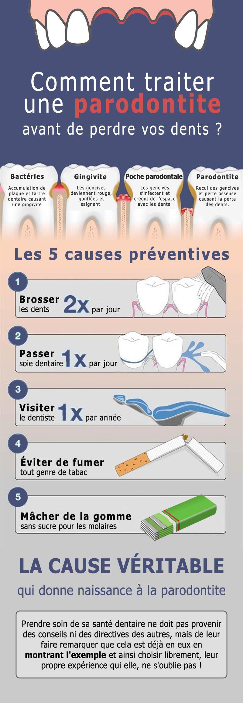 Soigner une parodontite