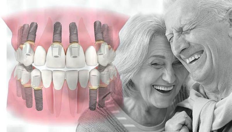 Combien coûte les implants pour une bouche complète ?