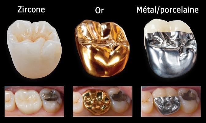 Types de couronnes dentaires
