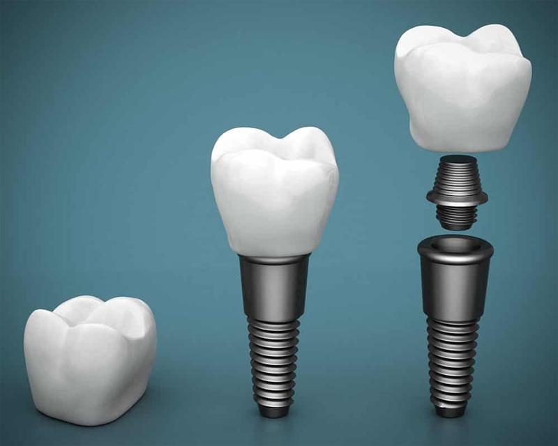 Combien de temps implant dentaire
