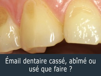 Émail dentaire cassé que faire ?