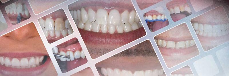 Types de matériaux des facettes dentaires