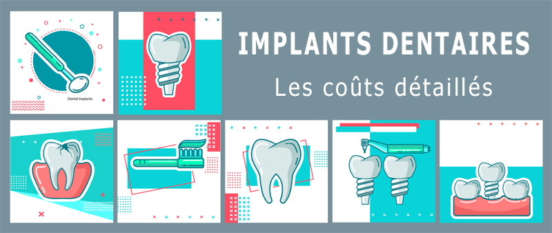 Devis implant dentaire
