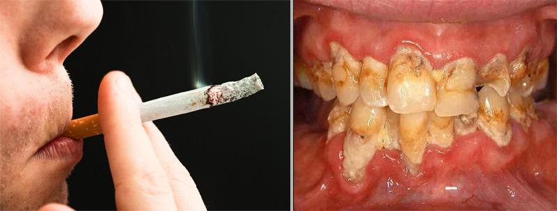 Qui ne peut avoir d'implant dentaire
