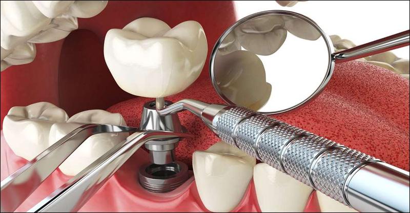 Avantages et inconvénients des implants dentaires