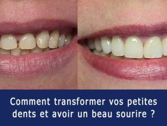 Transformer vos petites dents en un beau sourire
