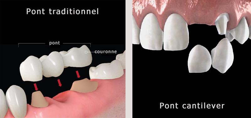 Types de ponts dentaires