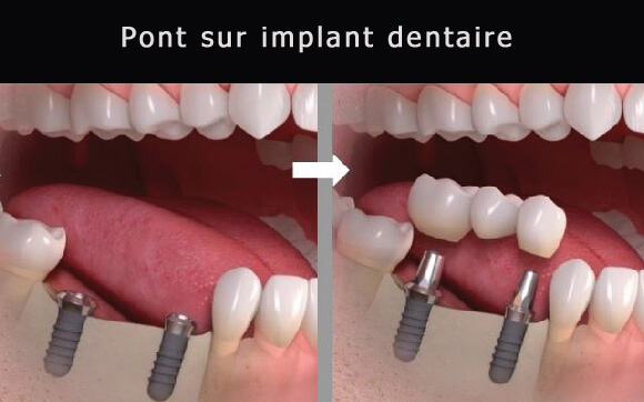 Pont sur implant dentaire