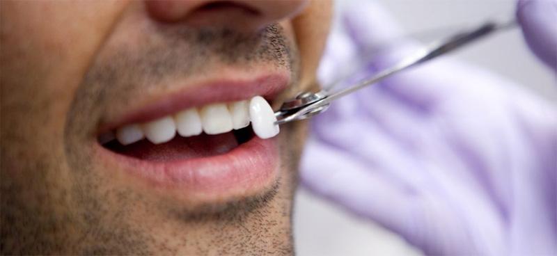Comment poser une facette dentaire