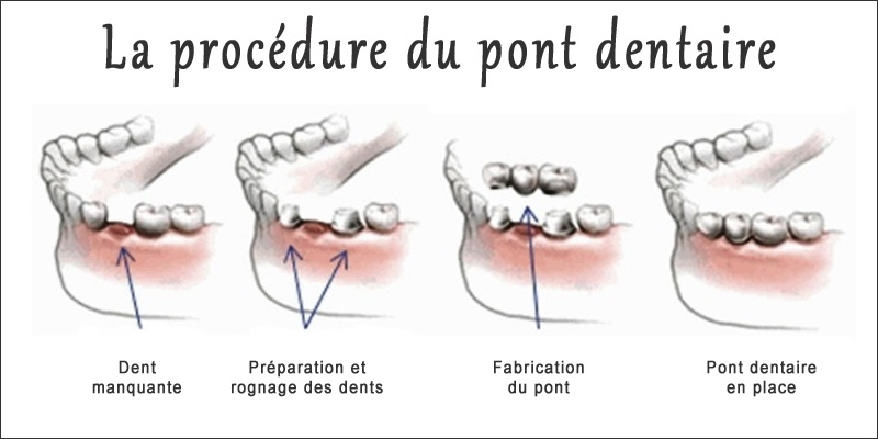 Comment poser un pont dentaire