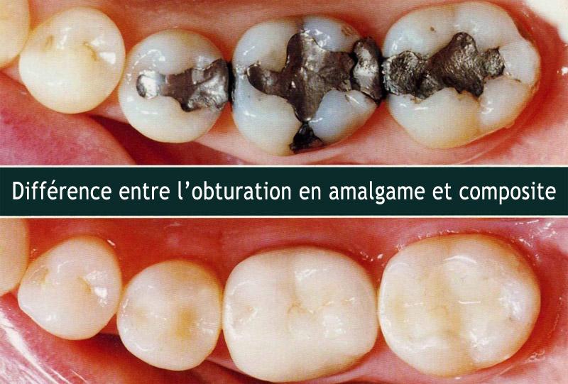 Obturation en amalgame et composite
