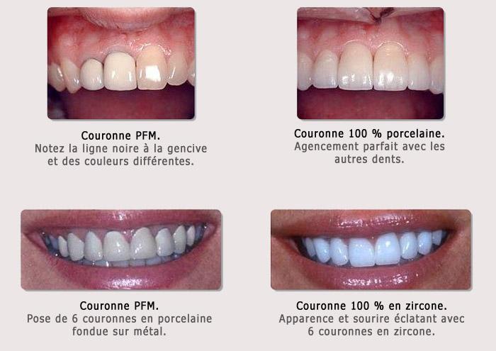 Couronne en PFM et couronne 100% en porcelaine