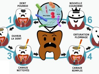 Dents pourries