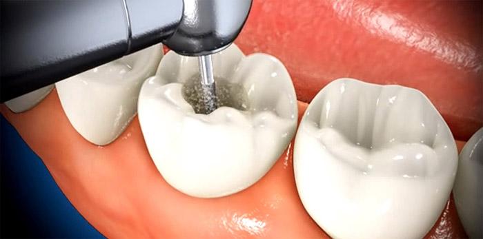 Ouvrir la dent
