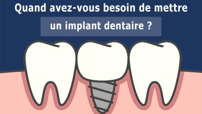 Quand avez-vous besoin de mettre un implant dentaire ?