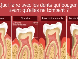 Dents qui bougent
