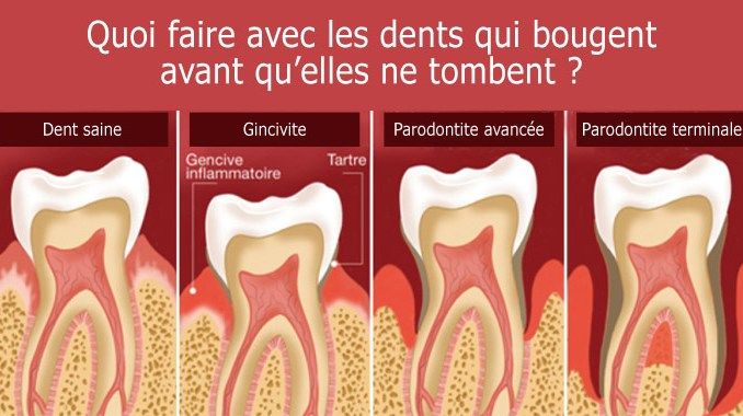 Dents qui bougent