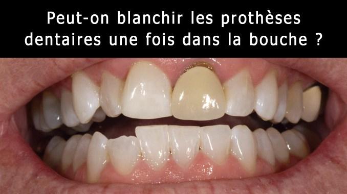 Peut-on blanchir les prothèses dentaires