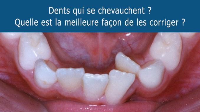 Dents qui se chevauchent