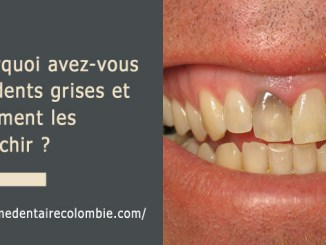 Dents grises