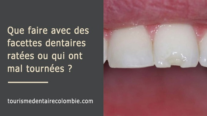 Facettes dentaires ratées