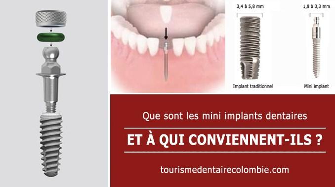 mini implants dentaires