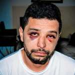 Man Beaten in Alleged Anti-Gay Hate Crime in Williamsburg, Brooklyn