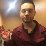 Gay Latino Student Attacked For Wearing High Heels, Links Hate Crime To Trump