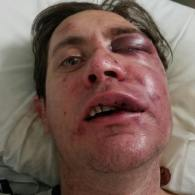 Police Investigate Brutal Assault On Gay Colorado Man: WATCH
