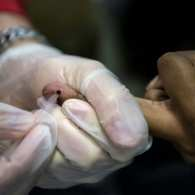 STDs in U.S. Surge to Record High; Gonorrhea and Syphilis See Steep Increases Among Gay Men