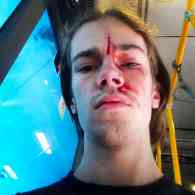 Godson of Former Australian PM Kevin Rudd Beaten After Standing Up for Gay Marriage