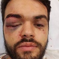 Gay Argentinian Rugby Player Hospitalized After Brutal Gang Attack