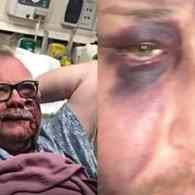 As SF Pride Approaches, Police Urge Gay Men to Travel in Groups After Two are Brutally Beaten: WATCH