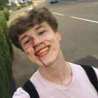 Gay Man Posts Defiant Smiling Bloody Selfie Moments After Homophobic Attack: 'U Will Get What's Coming to U'