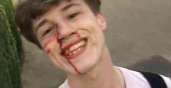 bloody selfie