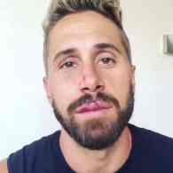 Men.com and Raging Stallion Performer Wesley Woods Assaulted in Anti-Gay Hate Crime: VIDEO
