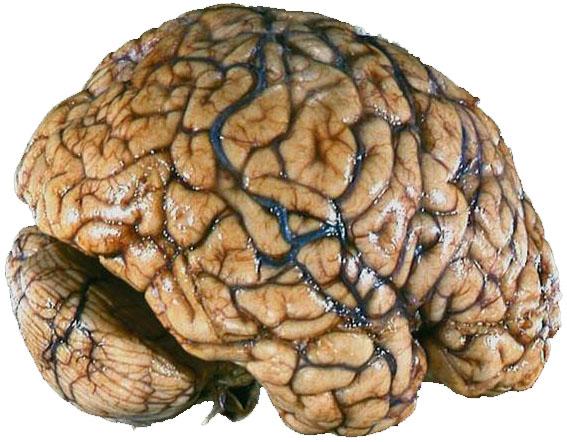 Resultado de imagen de cocaina cerebro