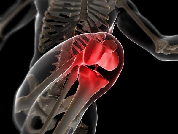 ジャンパー膝の症状・治療・サポーター・ストレッチ・テーピング全知識