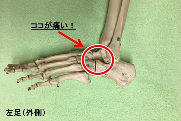 足根洞症候群の場所