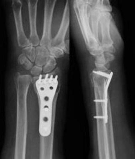 ロッキングプレートで固定した骨