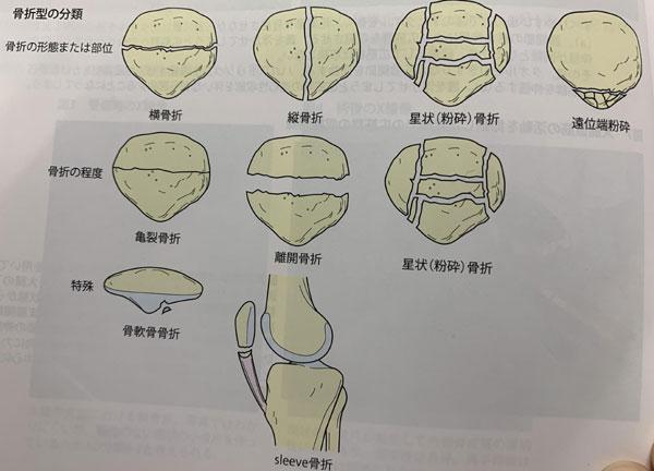 膝蓋骨骨折の分類