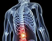 low back pain - Copyright – Stock Photo / Register Mark