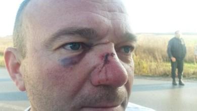 """Photo of """"KOLEGI SU BATINAŠI SLOMILI NOS"""": Pretučene srpske kamiondžije u Ukrajini stižu kući"""
