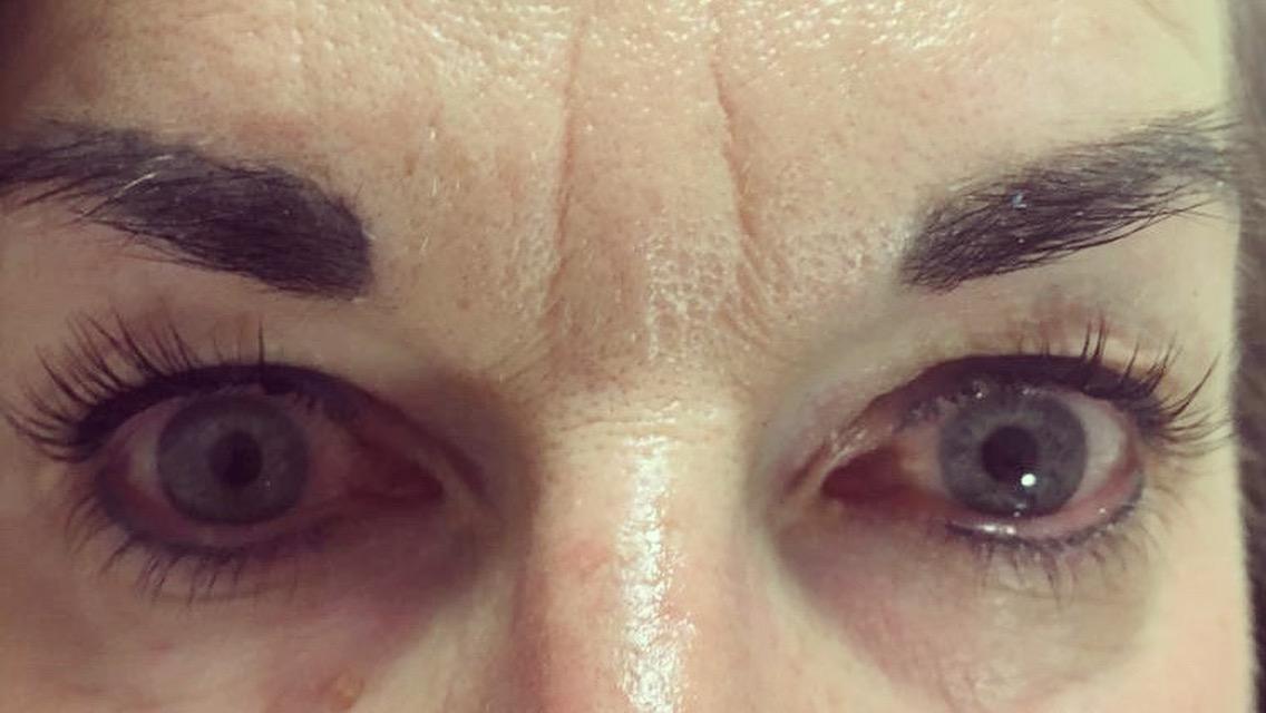 Eyelash lift front view