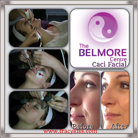 My Blog Is Used To Advertise The Belmore Centre Caci Facial