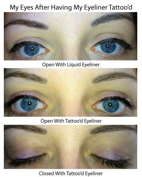 My Eyes Immediately After Having My Eyeliner Tattoo'd