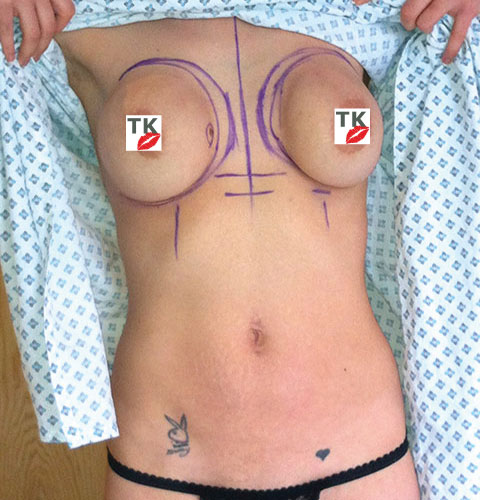 Vik, My Surgeon Marked Purple Lines On My Breasts To Show Where To Reposition My Breasts
