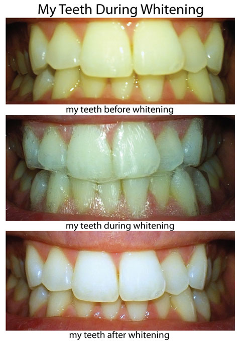 My Teeth Before, During And After Whitening With Crest Whitestrips