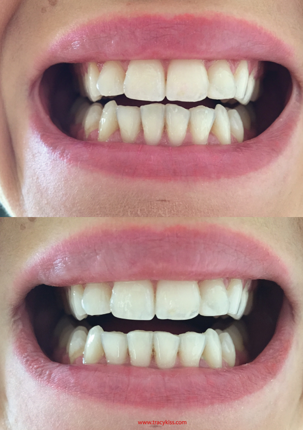 Filing Canine Teeth Before And After : filing, canine, teeth, before, after, Straightening, Teeth, Adult, Braces
